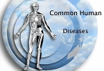 Common Human Diseases